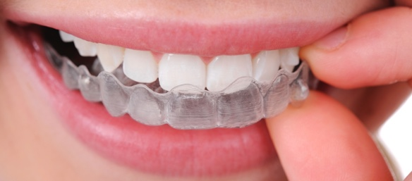 step 4 wear aligners 1 Ossi Orthodontics Jacksonville and St. Augustine Florida Orthodontist
